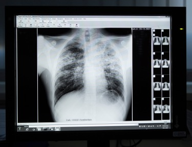 Lung X-ray BlackandWhite